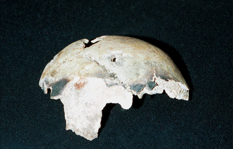 A fragment of Hitler's skull with a bullet hole